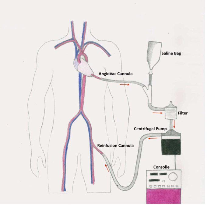 Azienda Ospedaliera Di Padova – Innovativo intervento al cuore