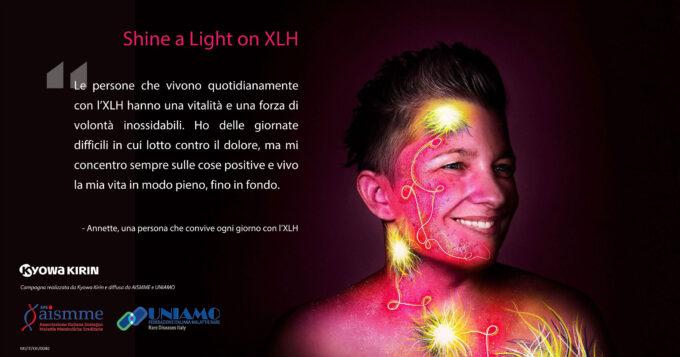 SHINE A LIGHT ON XLH  La campagna social per sensibilizzare sull'Ipofosfatemia legata all'X